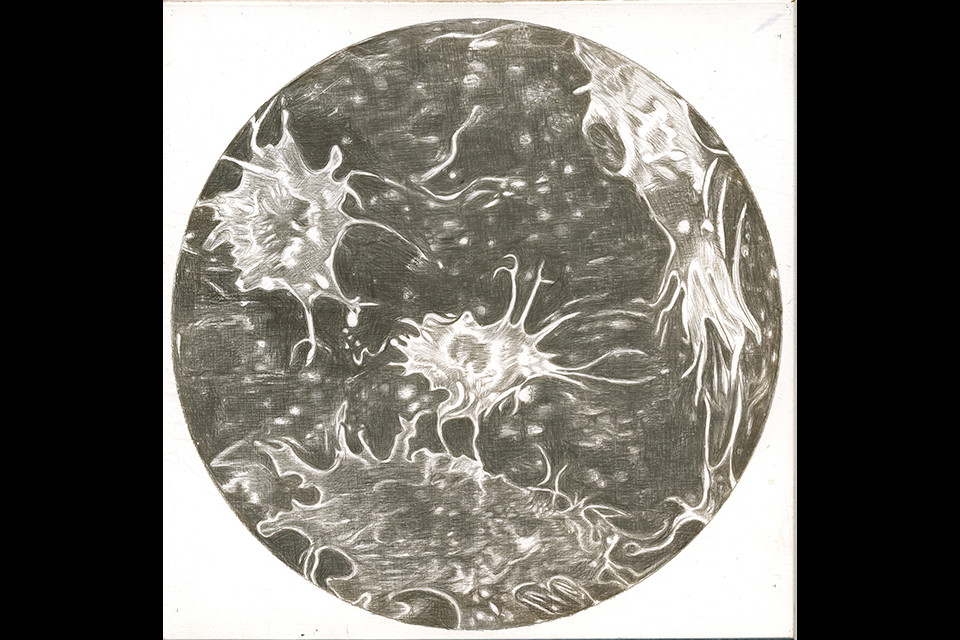 cancer_cells-web